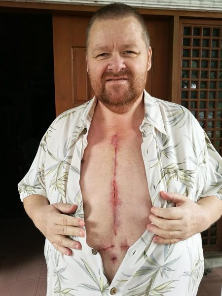 A lot of people have been asking to see what my incision/scar looks like, so here it is.